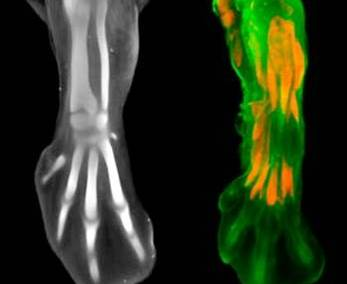Contracting muscles and cartilage rudiments of the skeleton develop at the same time in the embryo, and the movement of the muscles influences normal development of bone and cartilage. Highlighted in this 3D image is the developing limb skeleton (left), muscle (right, in orange) and tendon (right, in green).